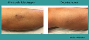 scleroterapia-evidenze-cliniche