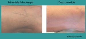 scleroterapia-evidenze-cliniche2png