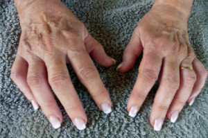artrite mani